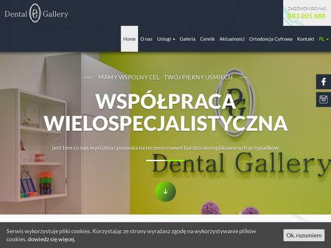 Dental-gallery.pl dentysta Warszawa