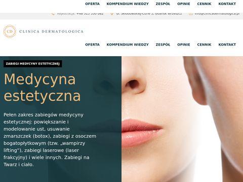Clinica Dermatologica Gdańsk - badanie znamion